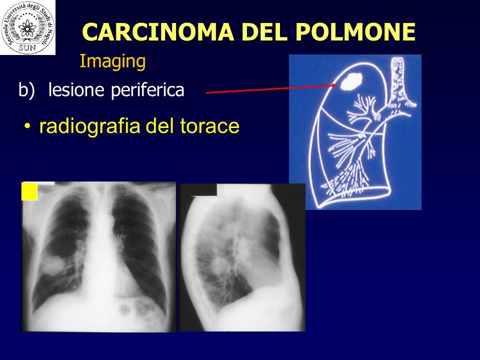 radiografia del torace b) b) lesione periferica Imaging CARCINOMA DEL POLMONE