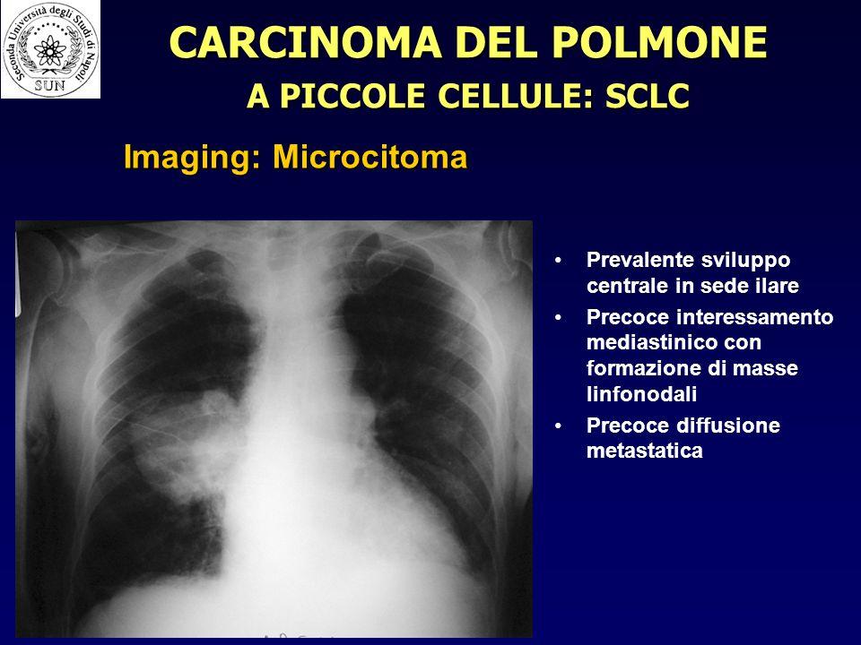 Prevalente sviluppo centrale in sede ilare Precoce interessamento mediastinico con formazione di masse linfonodali Precoce diffusione metastatica CARCINOMA DEL POLMONE A PICCOLE CELLULE: SCLC Imaging: Microcitoma