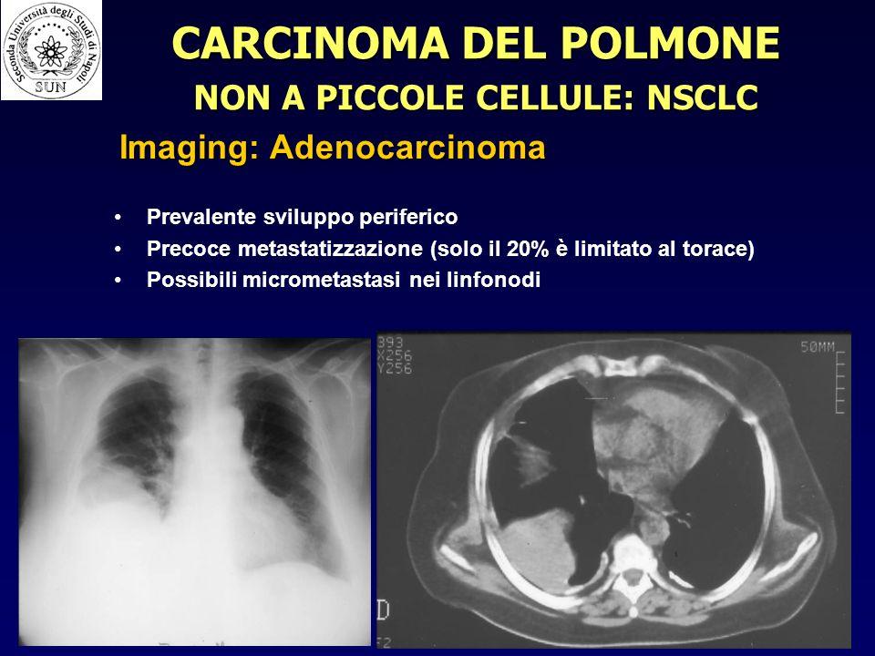 Prevalente sviluppo periferico Precoce metastatizzazione (solo il 20% è limitato al torace) Possibili micrometastasi nei linfonodi CARCINOMA DEL POLMONE NON A PICCOLE CELLULE: NSCLC Imaging: Adenocarcinoma
