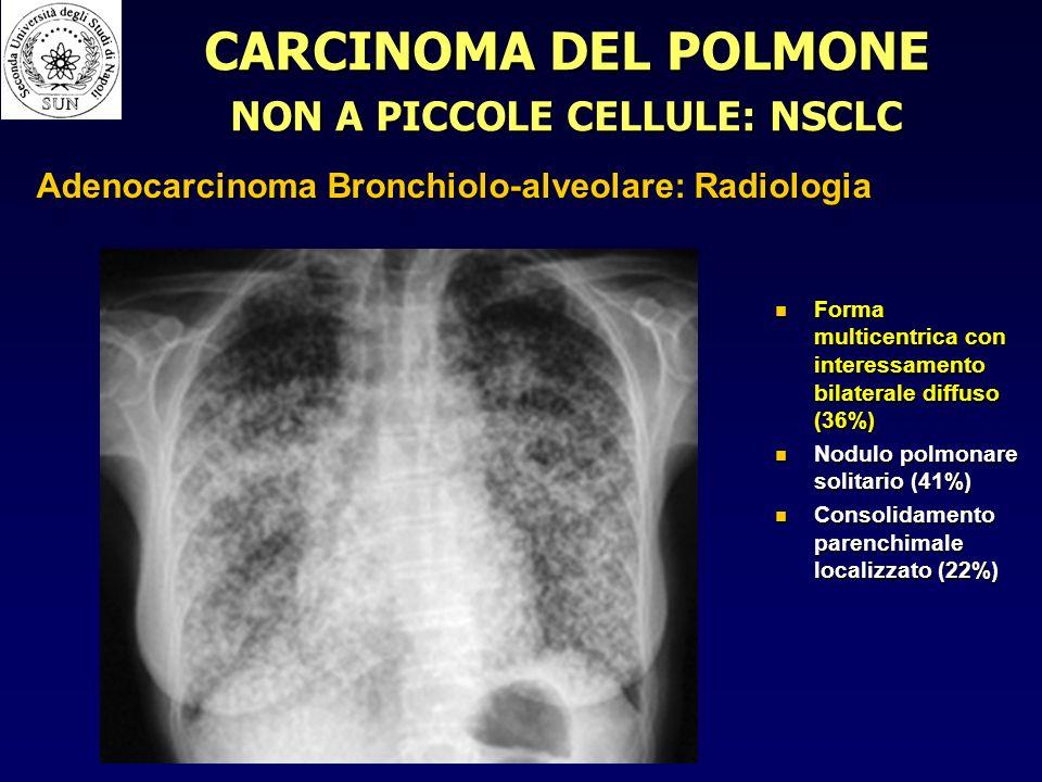 Forma multicentrica con interessamento bilaterale diffuso (36%) Forma multicentrica con interessamento bilaterale diffuso (36%) Nodulo polmonare solitario (41%) Nodulo polmonare solitario (41%) Consolidamento parenchimale localizzato (22%) Consolidamento parenchimale localizzato (22%) CARCINOMA DEL POLMONE NON A PICCOLE CELLULE: NSCLC Adenocarcinoma Bronchiolo-alveolare: Radiologia