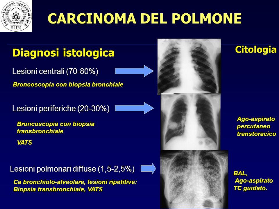 Lesioni centrali (70-80%) Lesioni periferiche (20-30%) Lesioni polmonari diffuse (1,5-2,5%) Broncoscopia con biopsia bronchiale Broncoscopia con biopsia transbronchiale VATS Ca bronchiolo-alveolare, lesioni ripetitive: Biopsia transbronchiale, VATS Diagnosi istologica Citologia Ago-aspirato percutaneo transtoracico BAL, Ago-aspirato TC guidato.