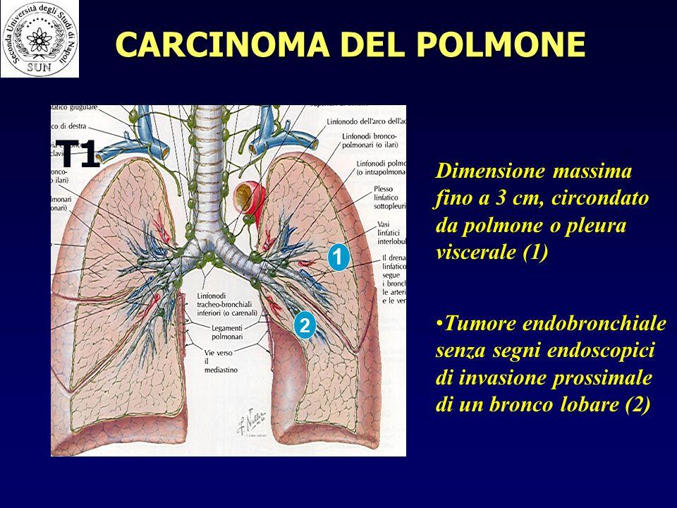 T1 Dimensione massima fino a 3 cm, circondato da polmone o pleura viscerale (1) Tumore endobronchiale senza segni endoscopici di invasione prossimale di un bronco lobare (2) 1 2 CARCINOMA DEL POLMONE
