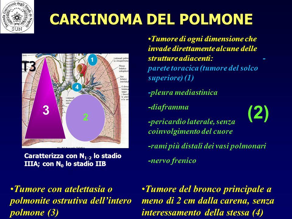 T3 Tumore di ogni dimensione che invade direttamente alcune delle strutture adiacenti: - parete toracica (tumore del solco superiore) (1) -pleura mediastinica -diaframma -pericardio laterale, senza coinvolgimento del cuore -rami più distali dei vasi polmonari -nervo frenico Tumore del bronco principale a meno di 2 cm dalla carena, senza interessamento della stessa (4) Tumore con atelettasia o polmonite ostrutiva dellintero polmone (3) 1 (2) 2 3 4 Caratterizza con N 1-2 lo stadio IIIA; con N 0 lo stadio IIB CARCINOMA DEL POLMONE