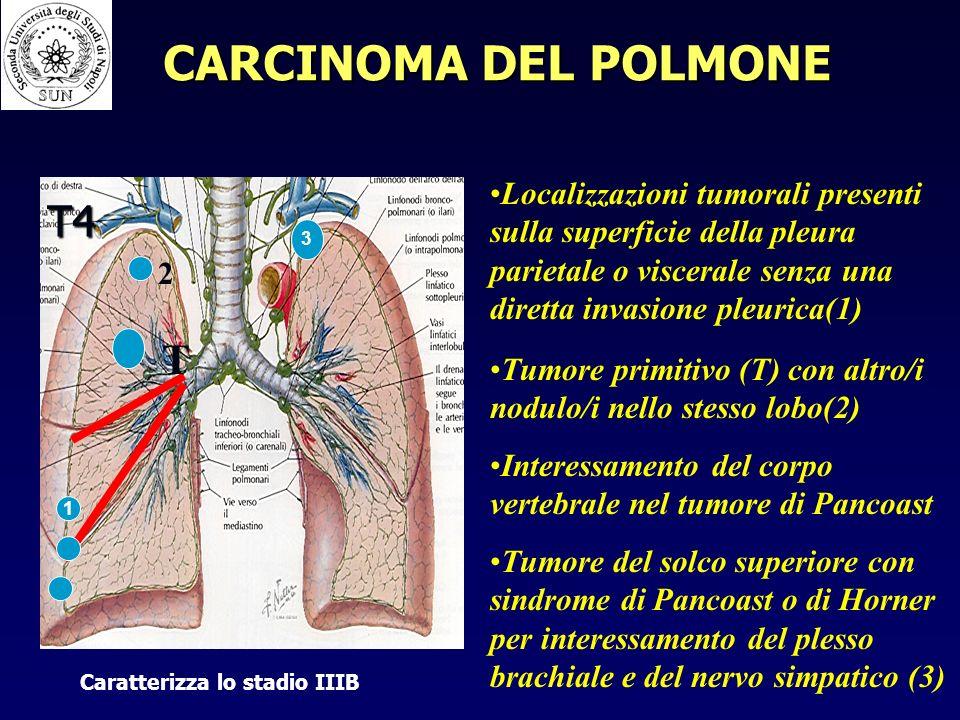 T4 Localizzazioni tumorali presenti sulla superficie della pleura parietale o viscerale senza una diretta invasione pleurica(1) Tumore primitivo (T) con altro/i nodulo/i nello stesso lobo(2) Interessamento del corpo vertebrale nel tumore di Pancoast Tumore del solco superiore con sindrome di Pancoast o di Horner per interessamento del plesso brachiale e del nervo simpatico (3) T 2 1 3 Caratterizza lo stadio IIIB CARCINOMA DEL POLMONE
