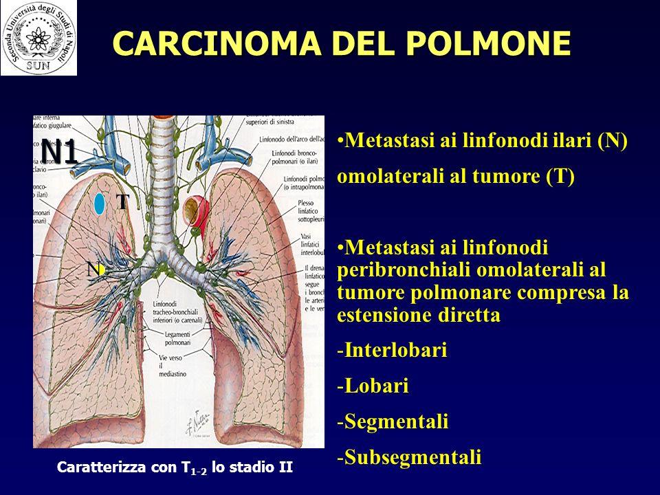 N1 Metastasi ai linfonodi ilari (N) omolaterali al tumore (T) Metastasi ai linfonodi peribronchiali omolaterali al tumore polmonare compresa la estensione diretta - -Interlobari - -Lobari - -Segmentali - -Subsegmentali T N Caratterizza con T 1-2 lo stadio II CARCINOMA DEL POLMONE