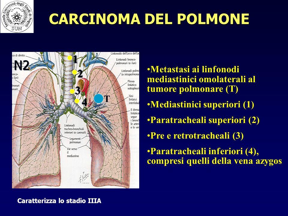 N2 Metastasi ai linfonodi mediastinici omolaterali al tumore polmonare (T) Mediastinici superiori (1) Paratracheali superiori (2) Pre e retrotracheali (3) Paratracheali inferiori (4), compresi quelli della vena azygos 1 2 3 4 T Caratterizza lo stadio IIIA CARCINOMA DEL POLMONE
