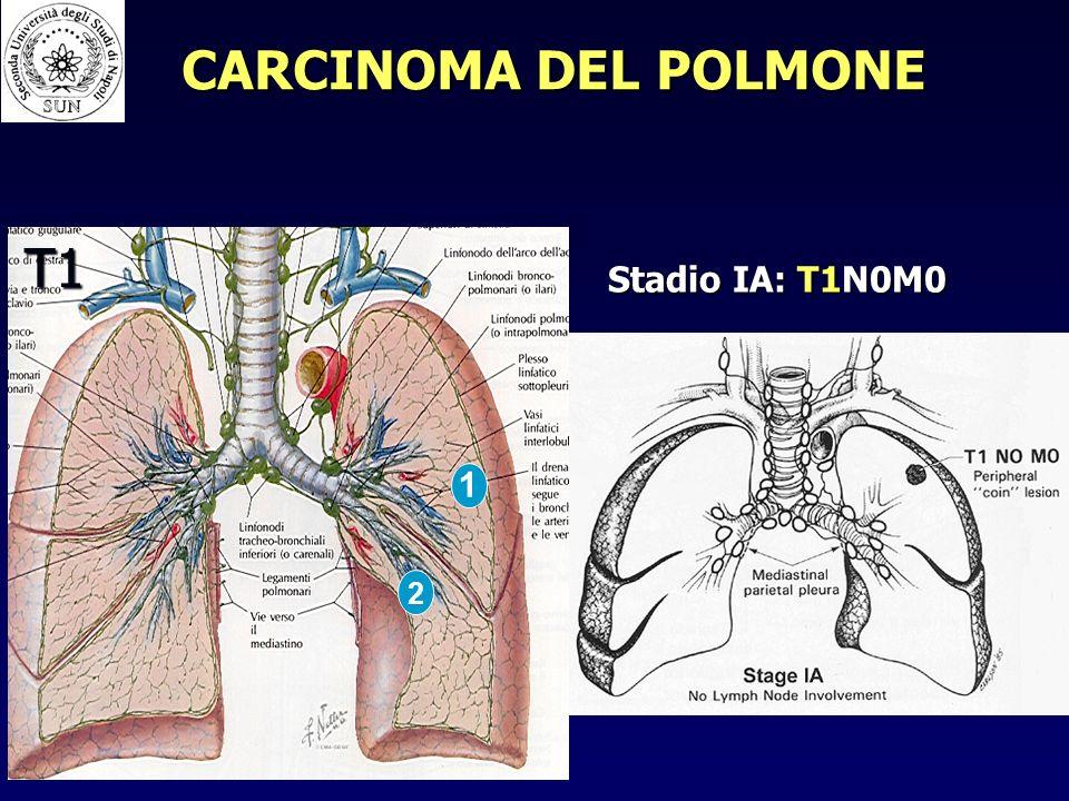 1 2 T1 Stadio IA: T1N0M0 CARCINOMA DEL POLMONE