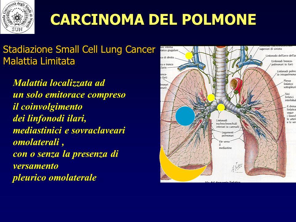 Malattia localizzata ad un solo emitorace compreso il coinvolgimento dei linfonodi ilari, mediastinici e sovraclaveari omolaterali, con o senza la presenza di versamento pleurico omolaterale Stadiazione Small Cell Lung Cancer Malattia Limitata CARCINOMA DEL POLMONE