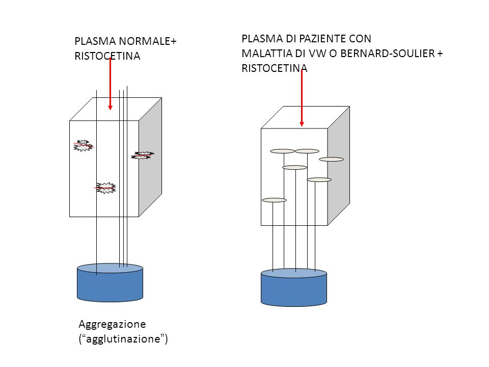 PLASMA NORMALE+ RISTOCETINA Aggregazione (agglutinazione) PLASMA DI PAZIENTE CON MALATTIA DI VW O BERNARD-SOULIER + RISTOCETINA