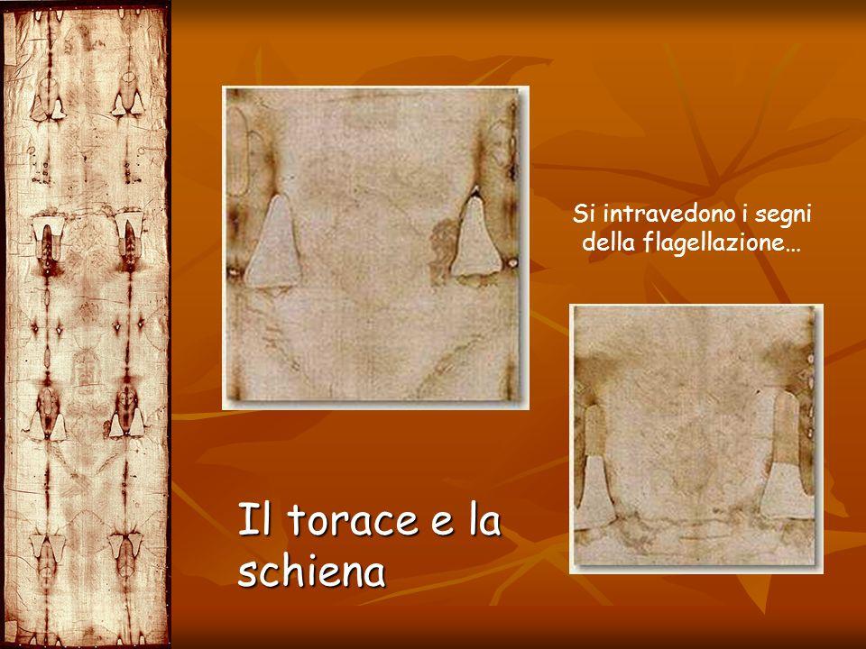Il torace e la schiena Si intravedono i segni della flagellazione…
