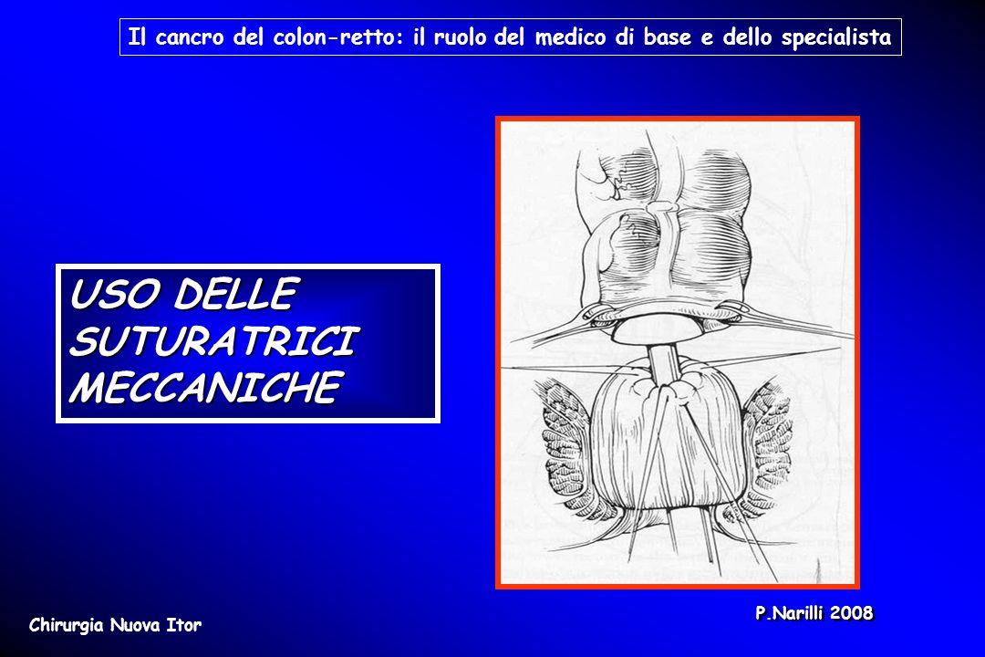 USO DELLE SUTURATRICI MECCANICHE Il cancro del colon-retto: il ruolo del medico di base e dello specialista Chirurgia Nuova Itor P.Narilli 2008