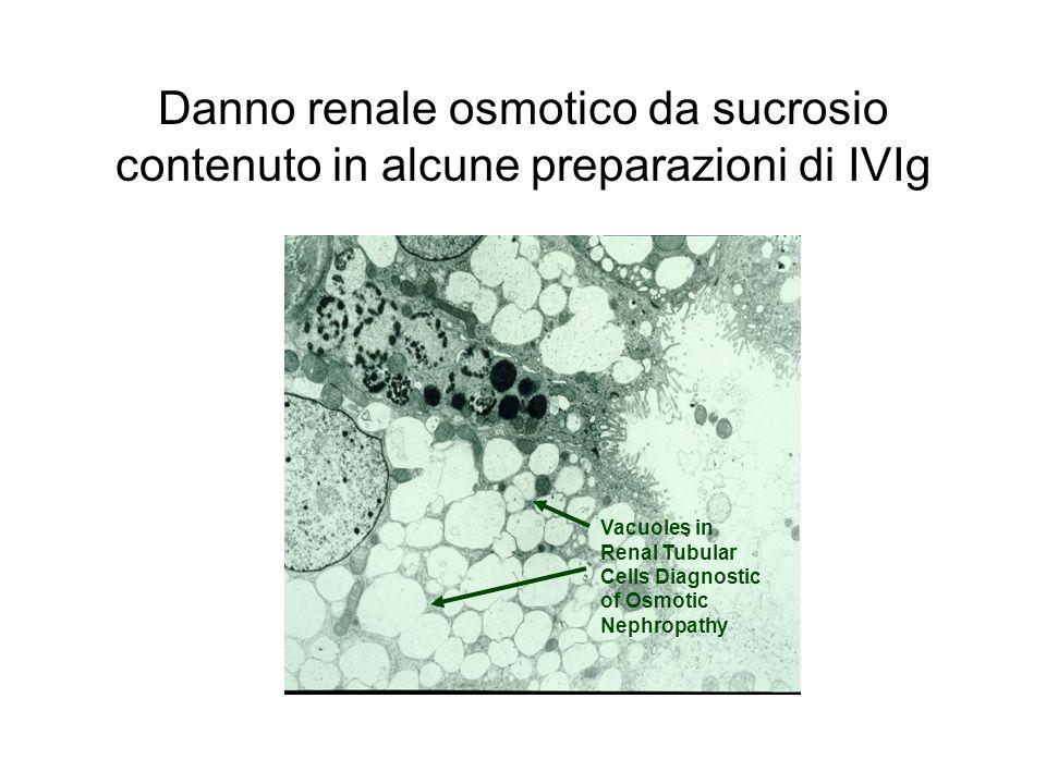 Danno renale osmotico da sucrosio contenuto in alcune preparazioni di IVIg Vacuoles in Renal Tubular Cells Diagnostic of Osmotic Nephropathy