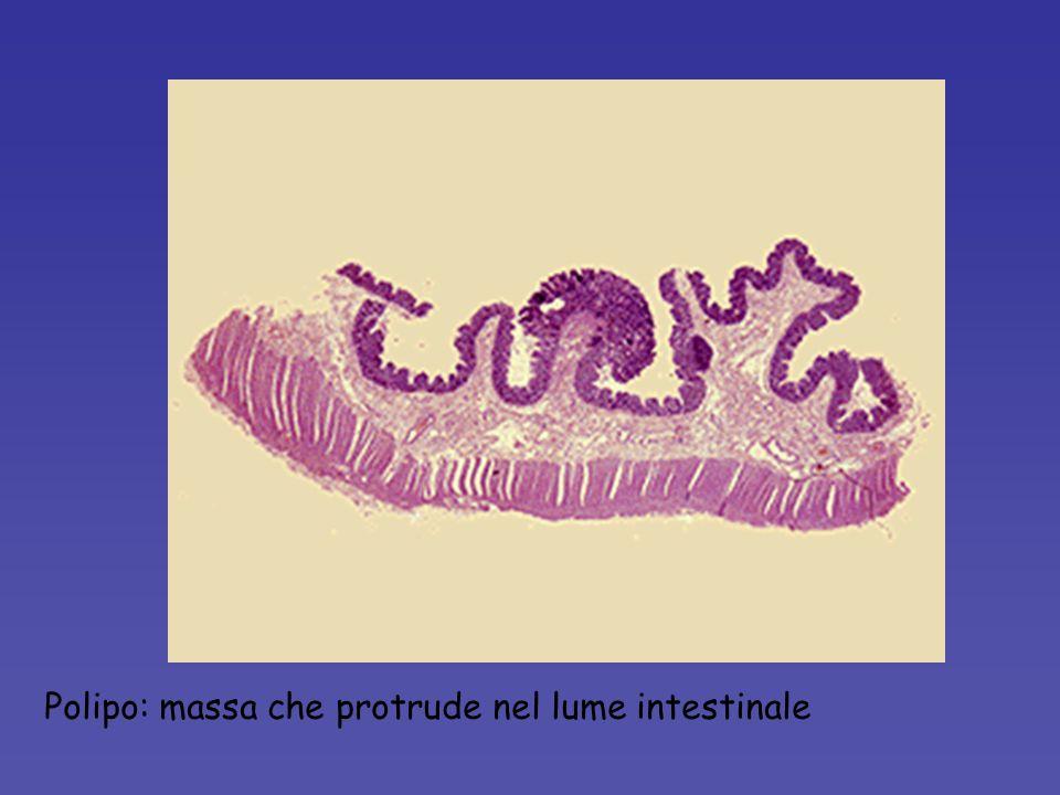 Polipo: massa che protrude nel lume intestinale