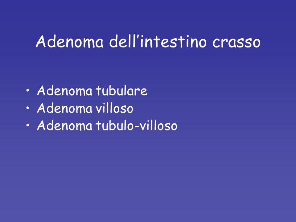 Adenoma dellintestino crasso Adenoma tubulare Adenoma villoso Adenoma tubulo-villoso