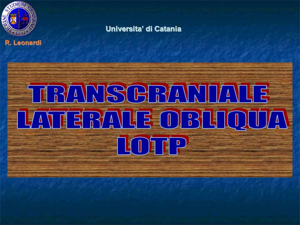 Universita di Catania R. Leonardi R. Leonardi