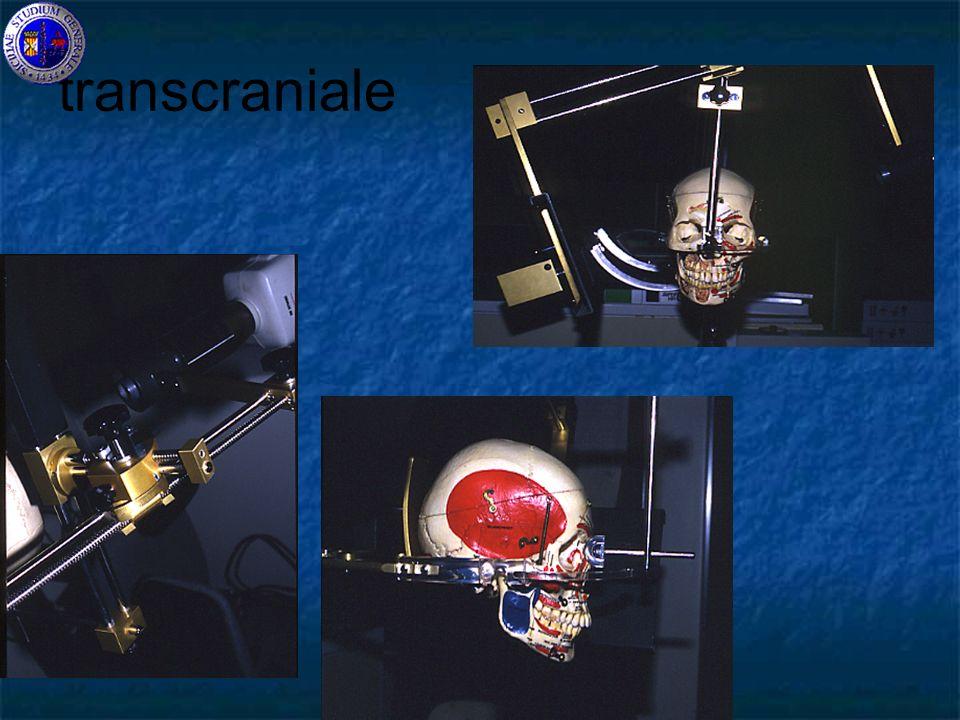 transcraniale