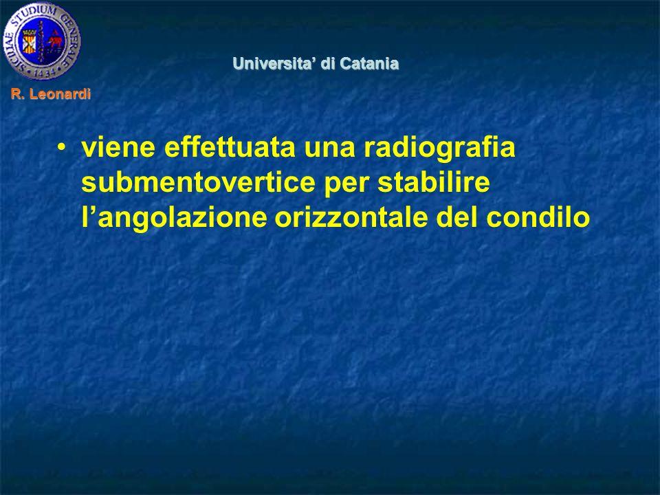 viene effettuata una radiografia submentovertice per stabilire langolazione orizzontale del condilo Universita di Catania R.