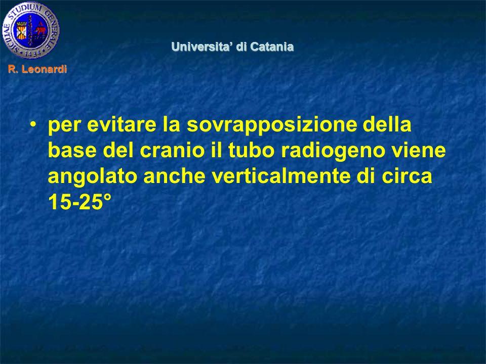 per evitare la sovrapposizione della base del cranio il tubo radiogeno viene angolato anche verticalmente di circa 15-25° Universita di Catania R.