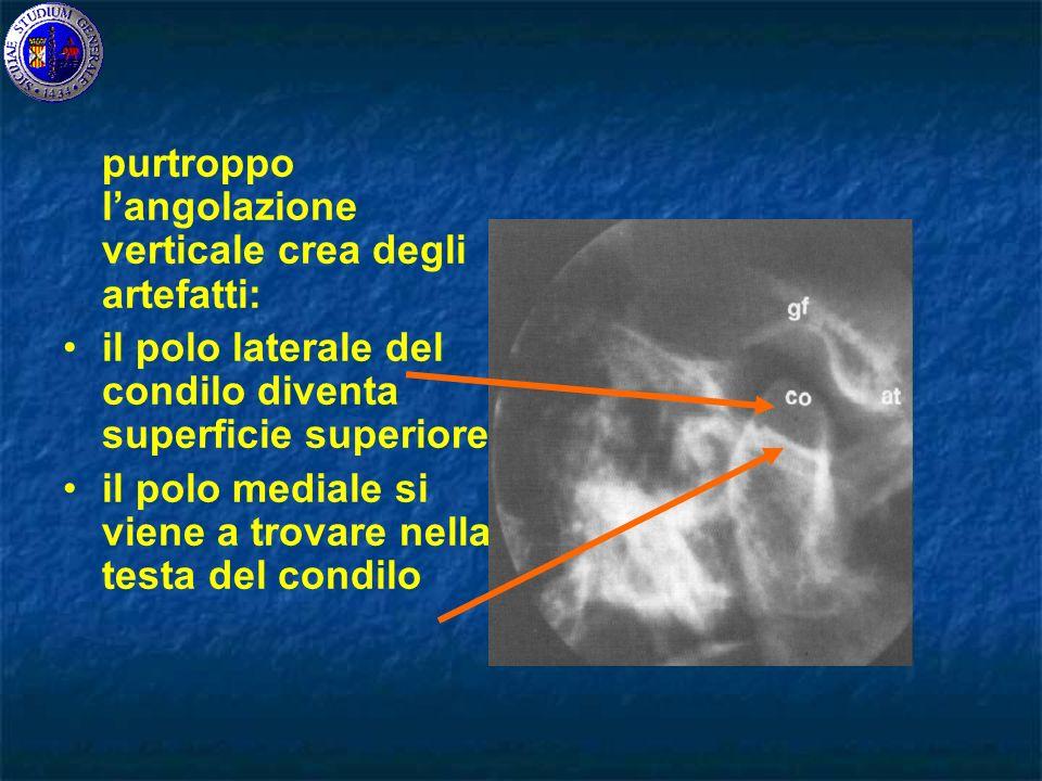 purtroppo langolazione verticale crea degli artefatti: il polo laterale del condilo diventa superficie superiore il polo mediale si viene a trovare nella testa del condilo
