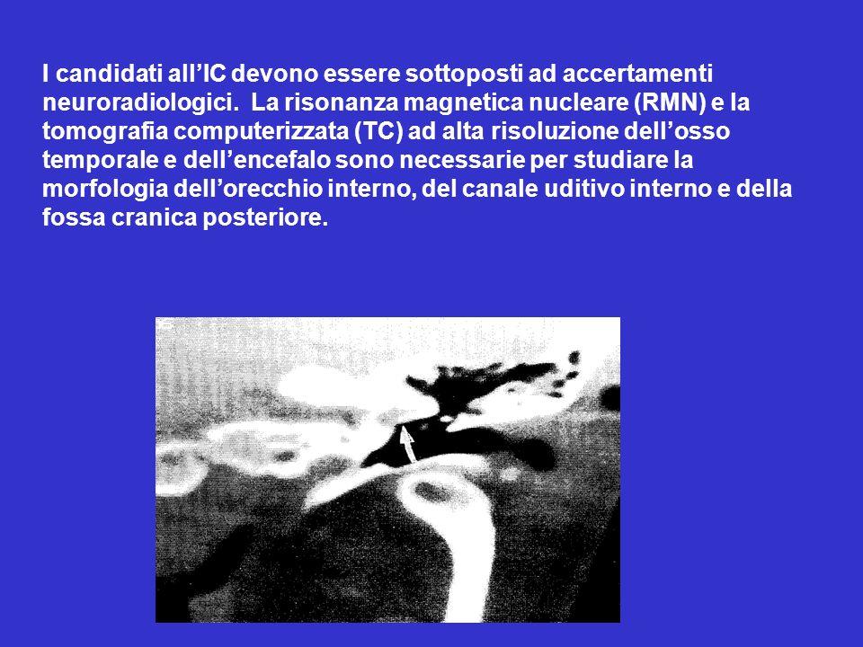 I candidati allIC devono essere sottoposti ad accertamenti neuroradiologici. La risonanza magnetica nucleare (RMN) e la tomografia computerizzata (TC)