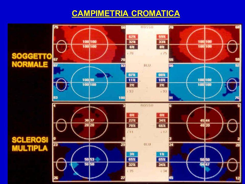 CAMPIMETRIA CROMATICA