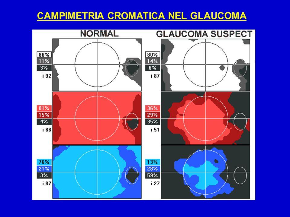 CAMPIMETRIA CROMATICA NEL GLAUCOMA