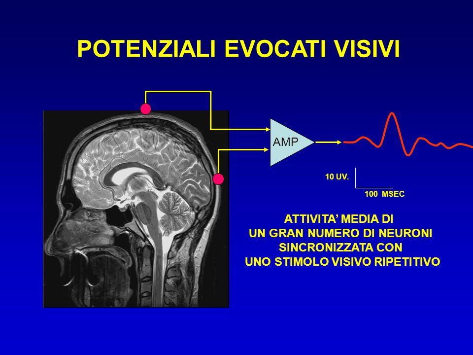 AMP 10 UV. 100 MSEC ATTIVITA MEDIA DI UN GRAN NUMERO DI NEURONI SINCRONIZZATA CON UNO STIMOLO VISIVO RIPETITIVO POTENZIALI EVOCATI VISIVI
