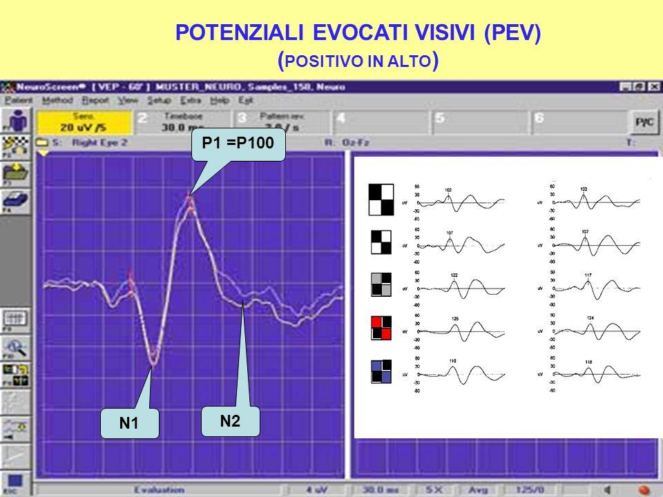 POTENZIALI EVOCATI VISIVI (PEV) ( POSITIVO IN ALTO ) ODOD OSOS P1 =P100 N1 N2