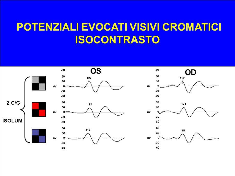 ODOS 1 C/G 2 C/G ISOLUM POTENZIALI EVOCATI VISIVI CROMATICI ISOCONTRASTO OS OD