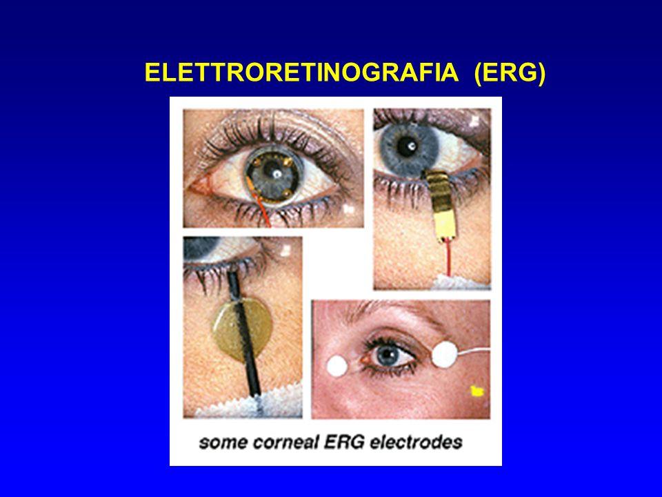 ELETTRORETINOGRAFIA (ERG)