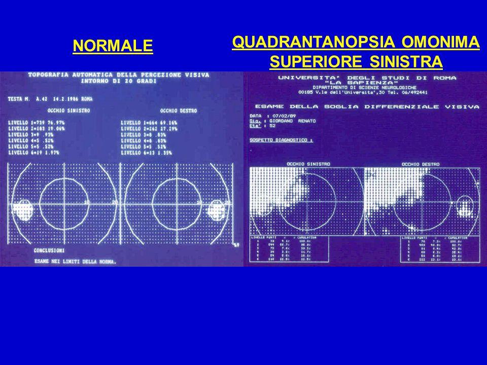 NORMALE QUADRANTANOPSIA OMONIMA SUPERIORE SINISTRA
