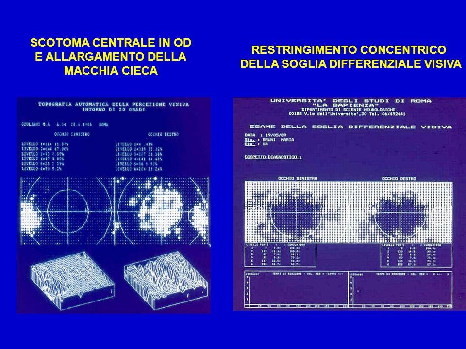 SCOTOMA CENTRALE IN OD E ALLARGAMENTO DELLA MACCHIA CIECA RESTRINGIMENTO CONCENTRICO DELLA SOGLIA DIFFERENZIALE VISIVA