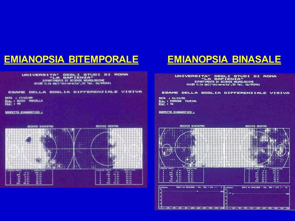 EMIANOPSIA BITEMPORALEEMIANOPSIA BINASALE
