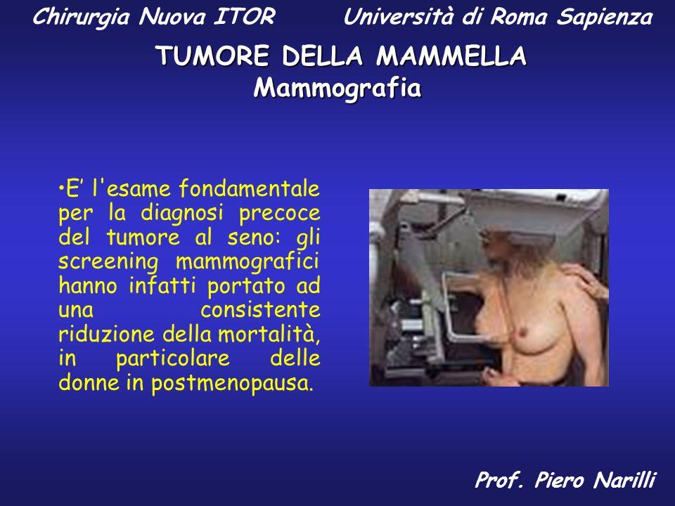 Mammografia E l'esame fondamentale per la diagnosi precoce del tumore al seno: gli screening mammografici hanno infatti portato ad una consistente rid