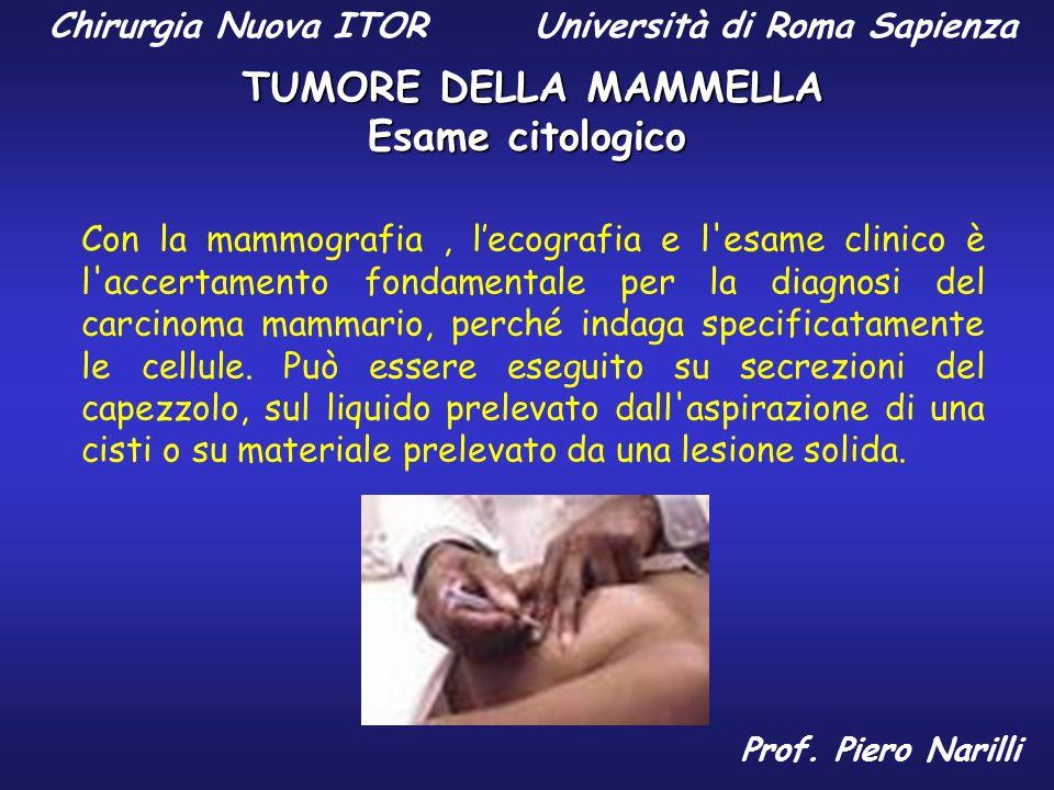 Esame citologico Con la mammografia, lecografia e l'esame clinico è l'accertamento fondamentale per la diagnosi del carcinoma mammario, perché indaga