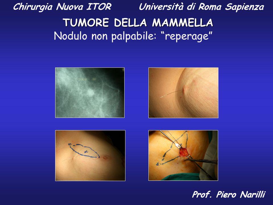 Chirurgia Nuova ITOR Università di Roma Sapienza TUMORE DELLA MAMMELLA Prof. Piero Narilli Nodulo non palpabile: reperage