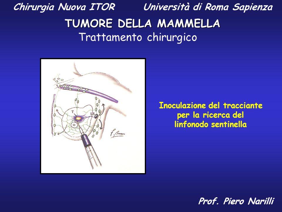 Inoculazione del tracciante per la ricerca del linfonodo sentinella Chirurgia Nuova ITOR Università di Roma Sapienza TUMORE DELLA MAMMELLA Prof. Piero