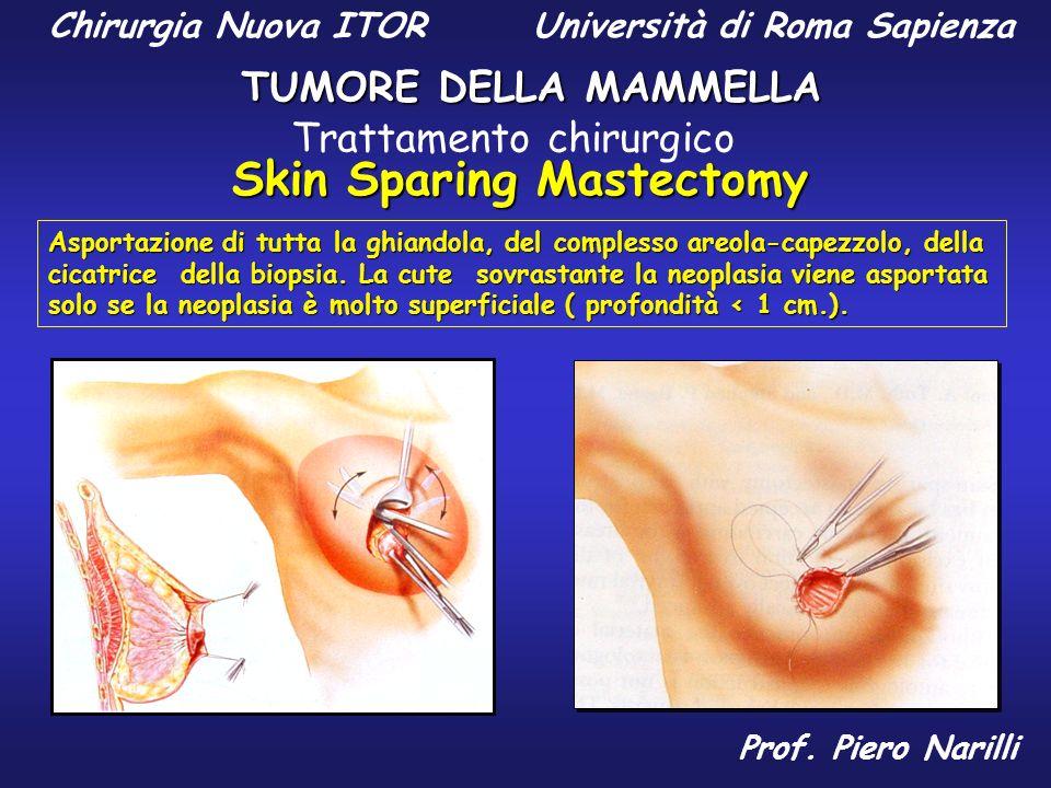 Chirurgia Nuova ITOR Università di Roma Sapienza TUMORE DELLA MAMMELLA Prof. Piero Narilli Skin Sparing Mastectomy Asportazione di tutta la ghiandola,