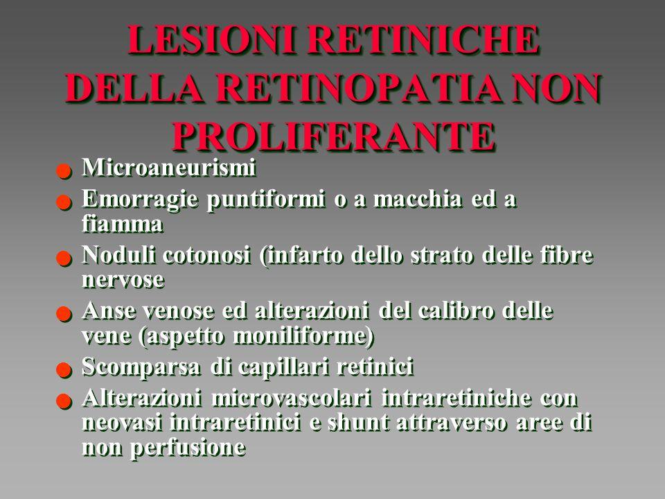 LESIONI RETINICHE NELLA RETINOPATIA PROLIFERANTE Neovascolarizzazione del disco Neovascolarizzazione non del disco: lungo le arcate vascolari e lungo i tralci vitreali prodotti dalla ialoide posteriore Neovascolarizzazione delliride e dellangolo camerulare (glaucoma neovascolare) Formazione di tessuto fibroso Trazioni retiniche: edema maculare e distorsione della macula, distacco trazionale, rotture retiniche e distacco regmatogeno Emorragie vitreali Neovascolarizzazione del disco Neovascolarizzazione non del disco: lungo le arcate vascolari e lungo i tralci vitreali prodotti dalla ialoide posteriore Neovascolarizzazione delliride e dellangolo camerulare (glaucoma neovascolare) Formazione di tessuto fibroso Trazioni retiniche: edema maculare e distorsione della macula, distacco trazionale, rotture retiniche e distacco regmatogeno Emorragie vitreali