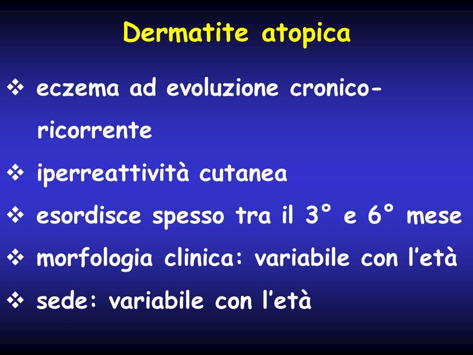 Dermatite atopica eczema ad evoluzione cronico- ricorrente iperreattività cutanea esordisce spesso tra il 3° e 6° mese morfologia clinica: variabile c