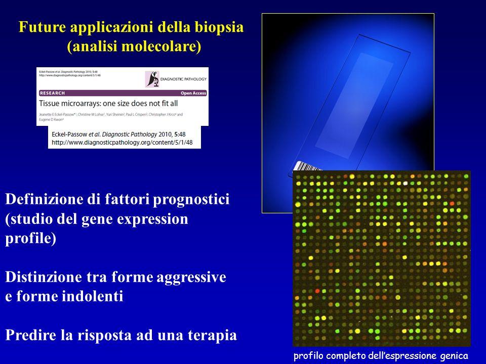 Future applicazioni della biopsia (analisi molecolare) Definizione di fattori prognostici (studio del gene expression profile) Distinzione tra forme a