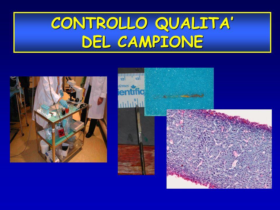 CONTROLLO QUALITA DEL CAMPIONE