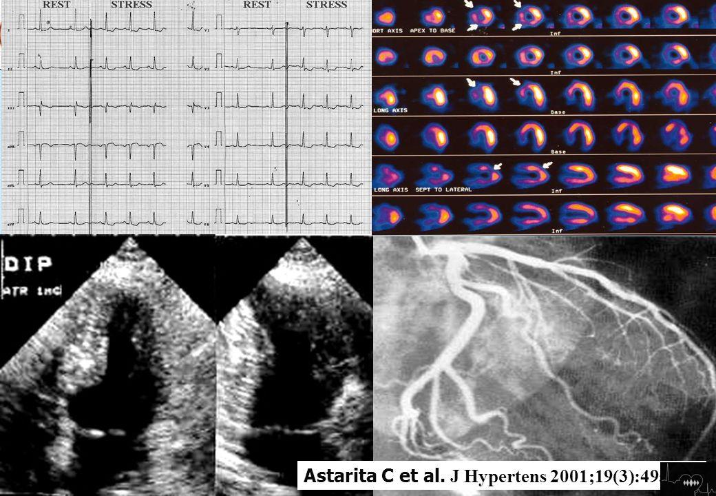Cinesi e riserva nella angina microvascolare Astarita C et al. J Hypertens 2001;19(3):495-502 s Teaching – Leco-stress nel 2011 Teaching – Leco-stress