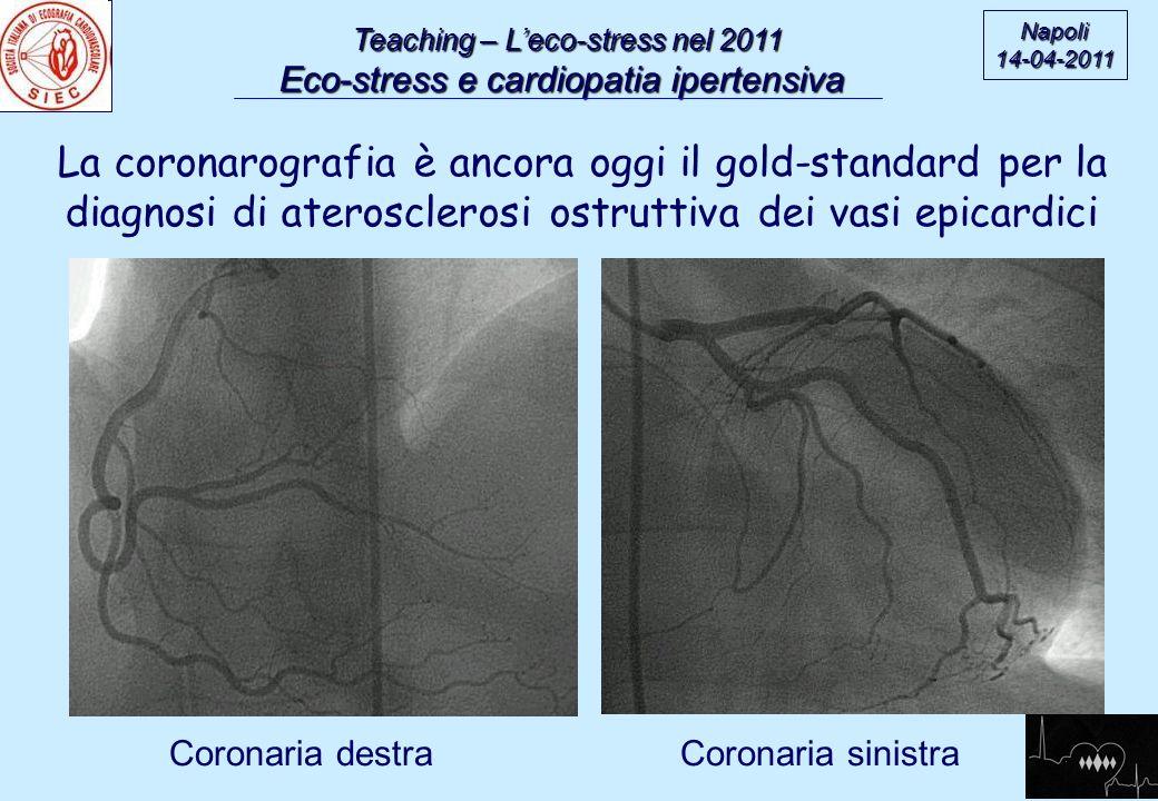 Teaching – Eco-stress nel 2011 Eco-stress e cardiopatia ipertensiva Napoli14-04-2011 European Association of Echocardiography Guidelines