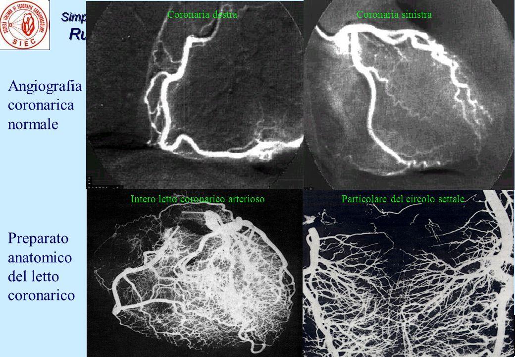 Simposio congiunto con SIIA: la diagnosi della cardiopatia ipertensiva Ruolo delleco-stress nella cardiopatia ipertensiva Napoli15-04-2011 Angiografia