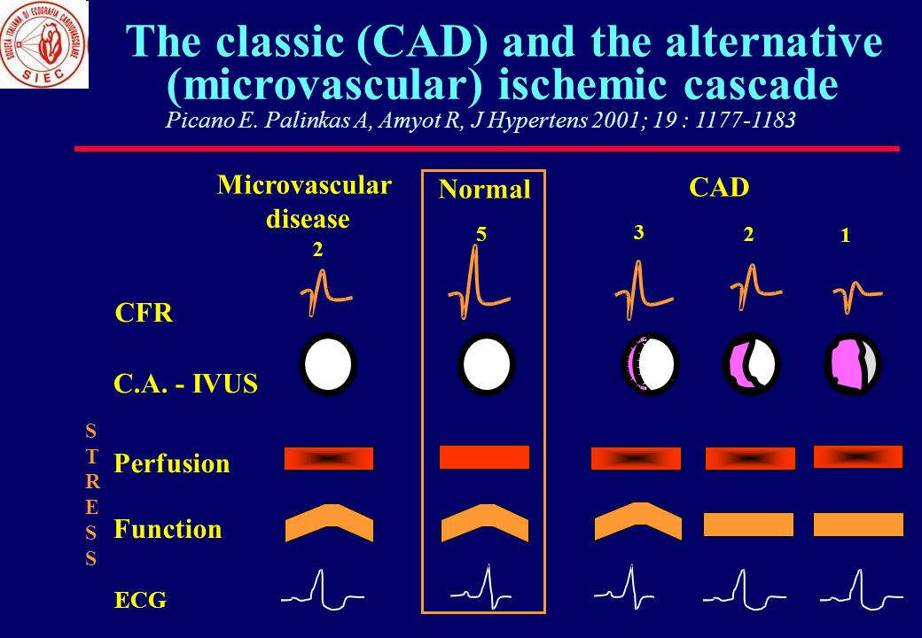 The classic (CAD) and the alternative (microvascular) ischemic cascade Picano E. Palinkas A, Amyot R, J Hypertens 2001; 19 : 1177-1183 CFR C.A. - IVUS