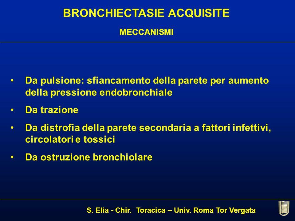 BRONCHIECTASIE ACQUISITE MECCANISMI Da pulsione: sfiancamento della parete per aumento della pressione endobronchiale Da trazione Da distrofia della p