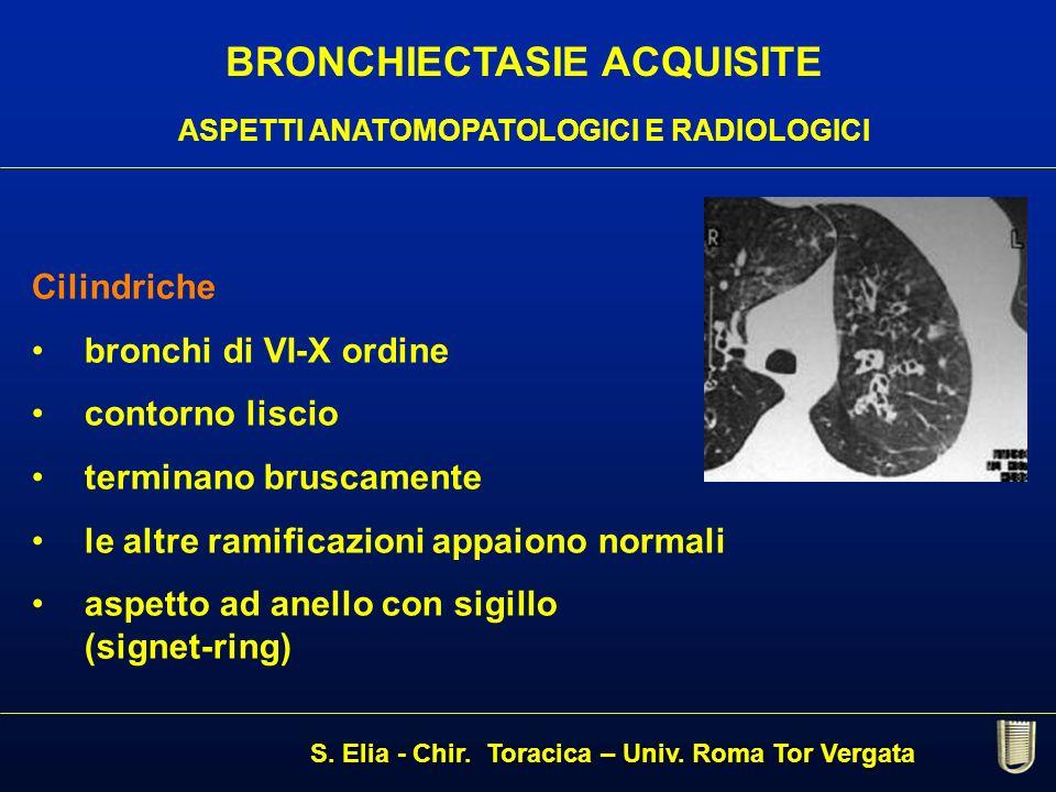 BRONCHIECTASIE ACQUISITE ASPETTI ANATOMOPATOLOGICI E RADIOLOGICI Cilindriche bronchi di VI-X ordine contorno liscio terminano bruscamente le altre ram