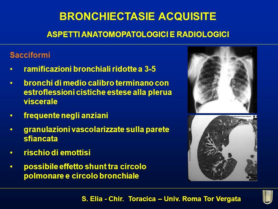 Sacciformi ramificazioni bronchiali ridotte a 3-5 bronchi di medio calibro terminano con estroflessioni cistiche estese alla plerua viscerale frequent