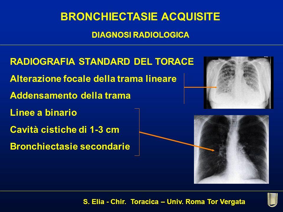 BRONCHIECTASIE ACQUISITE DIAGNOSI RADIOLOGICA RADIOGRAFIA STANDARD DEL TORACE Alterazione focale della trama lineare Addensamento della trama Linee a